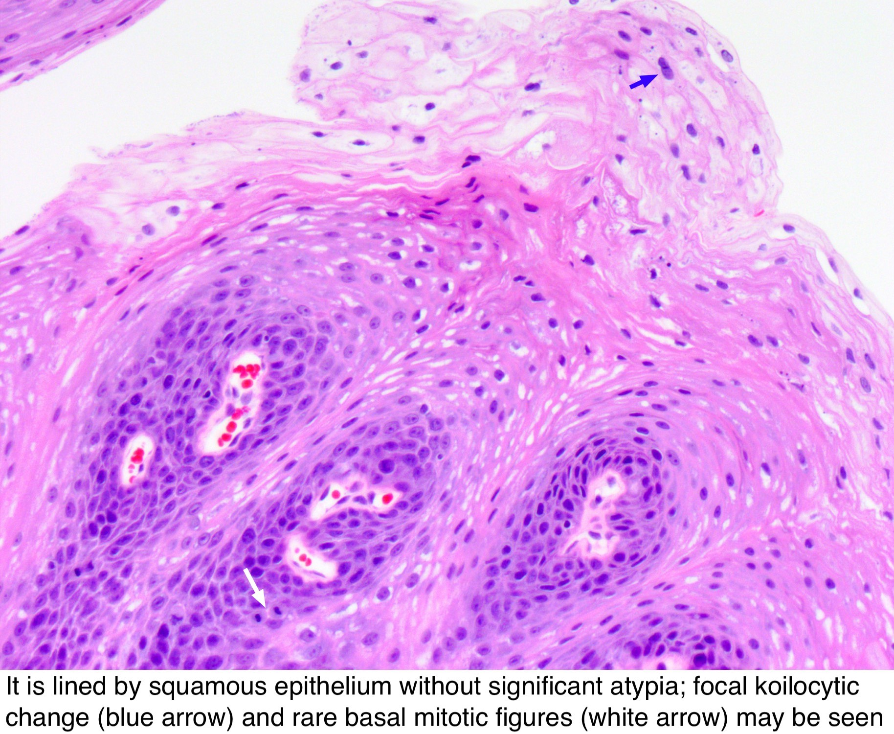squamous papilloma with mild dysplasia condyloma acuminatum and pregnancy