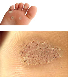 foot verruca how to treat