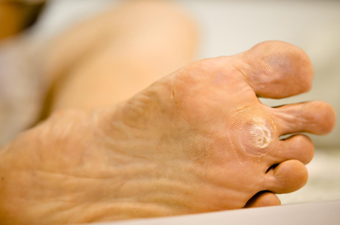 foot wart painful
