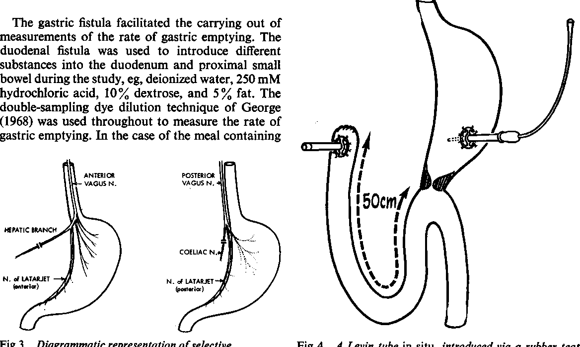 gastric cancer vagotomy