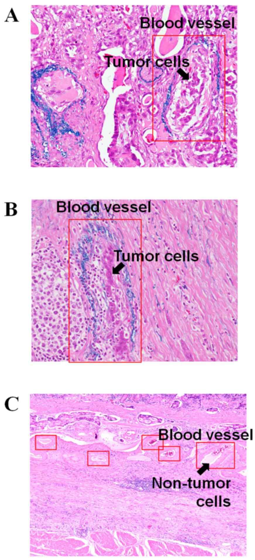 gastric cancer vascular invasion virusi chrome