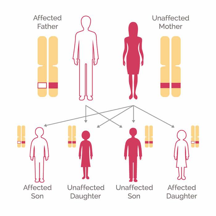 genetic cancer breast hpv was ist das genau
