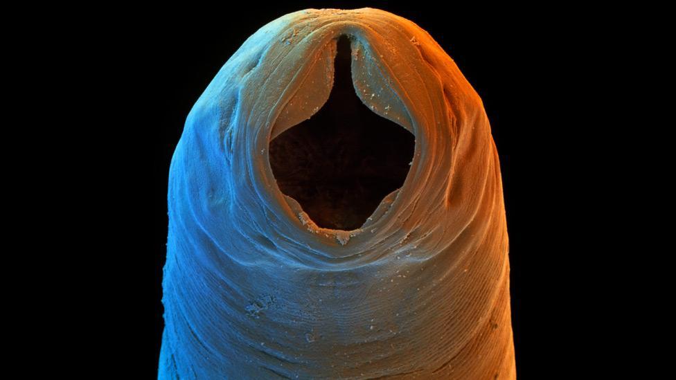 papilloma virus vaccino efficacia nematode helminth definition