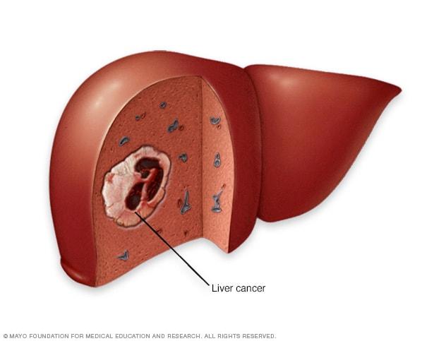 hepatocellular cancer symptoms