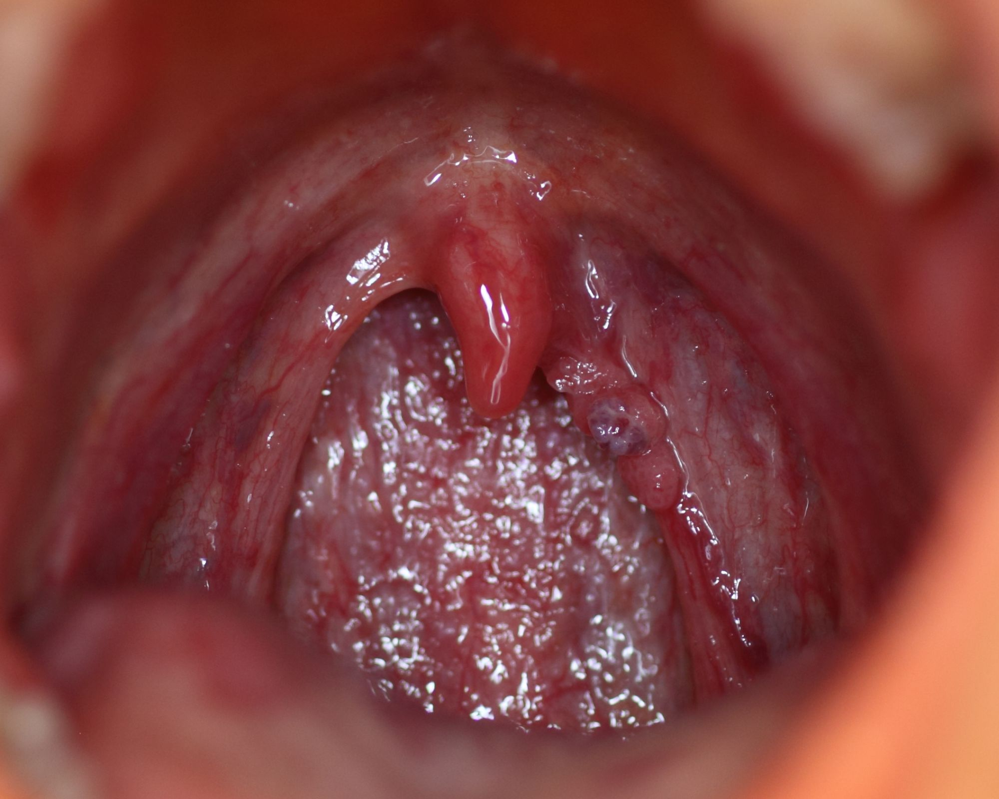 hpv in tongue pictures