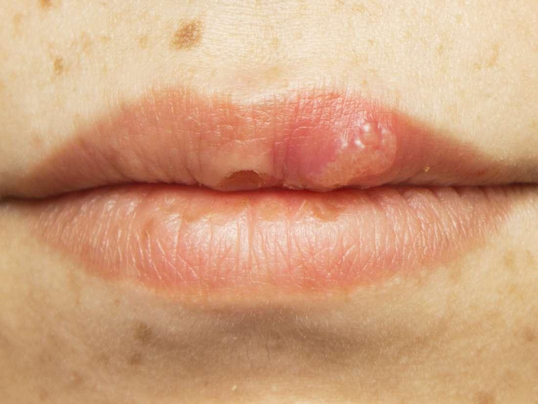 hpv caused tonsil cancer papiloma escamoso en boca tratamiento