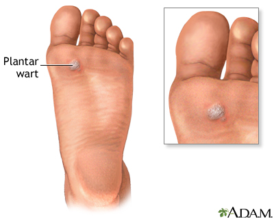 hpv wart on foot hpv virus soa test