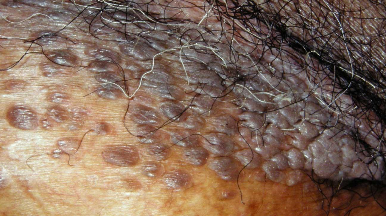 hpv warts scrotum