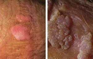 human hpv genital warts papiloma lo transmite el hombre