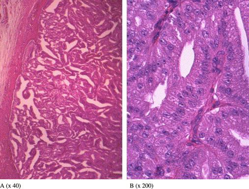 intraductal papilloma salivary gland tratament viermisori adulti
