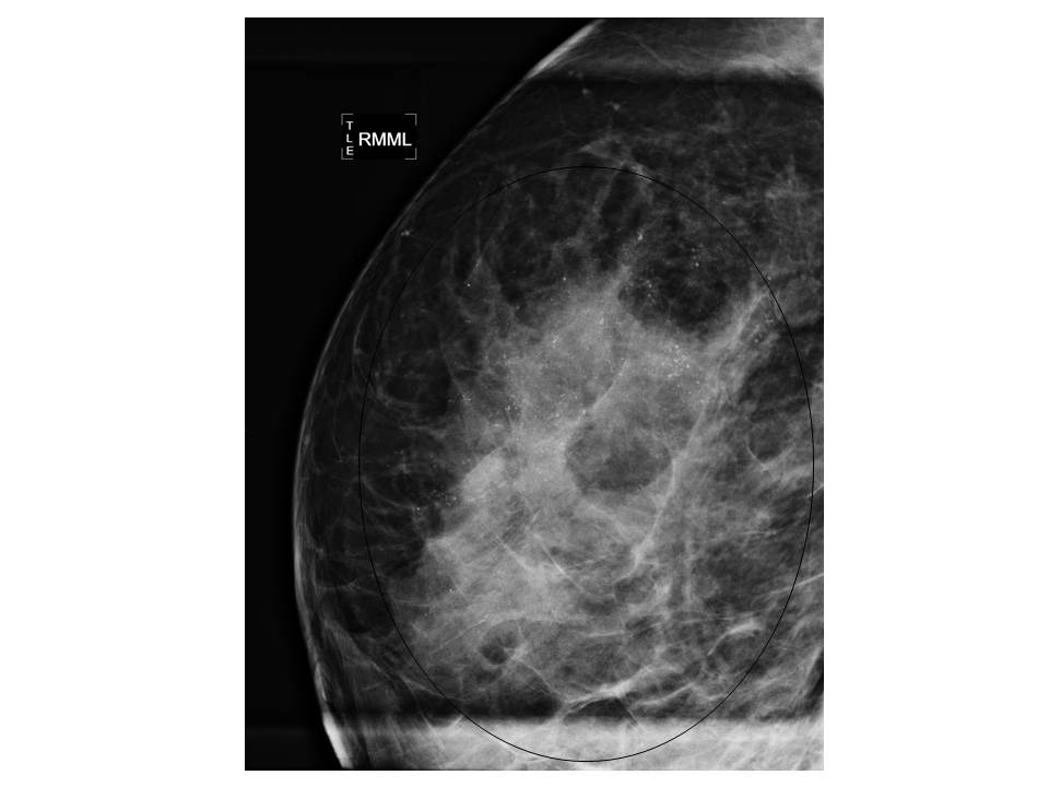 intraductal papilloma with calcifications condylome hpv bouche