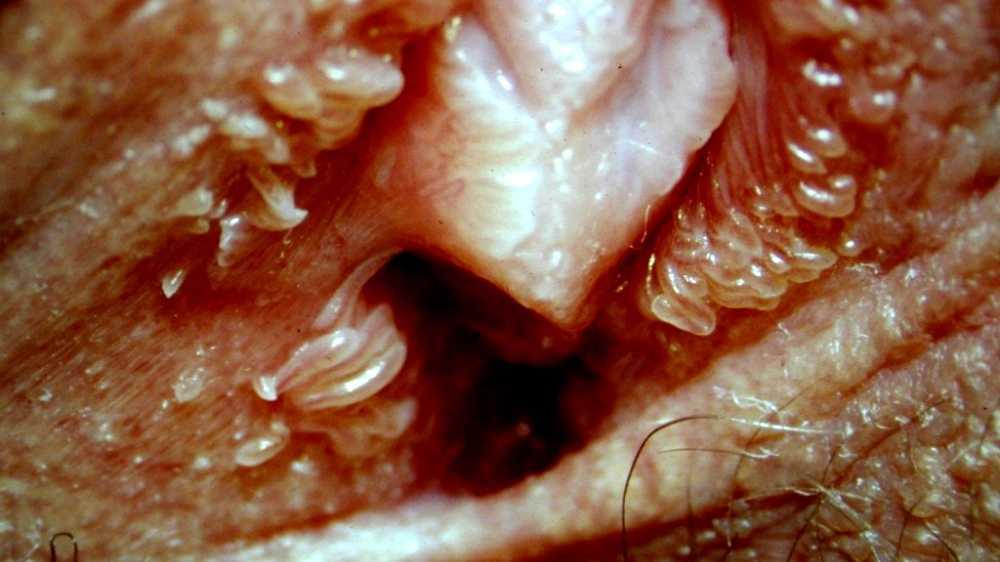 is vestibular papillomatosis itchy
