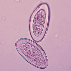 papiloma virus in gola
