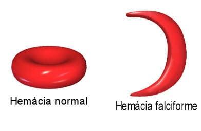 lanemie falciforme que es virus del papiloma y tratamiento