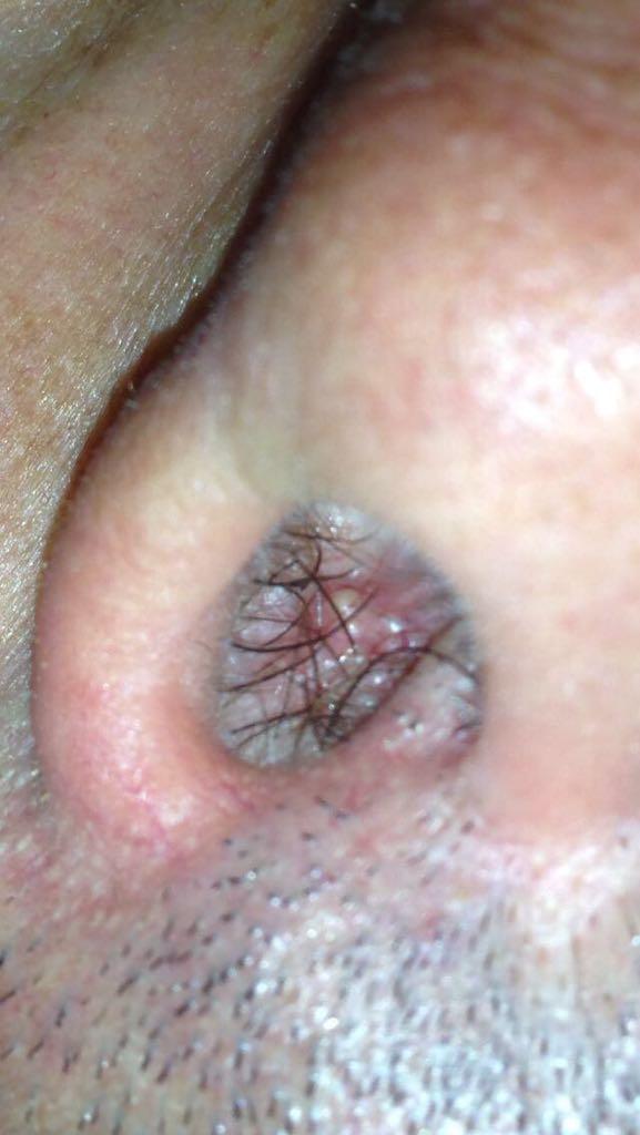 lesioni del papilloma virus papiloma humano bacteria que lo produce