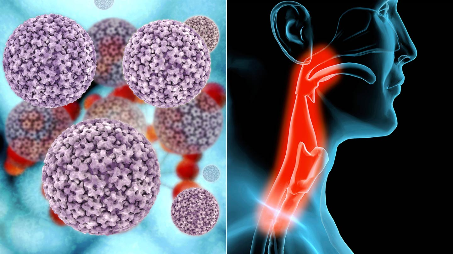 male throat cancer from hpv