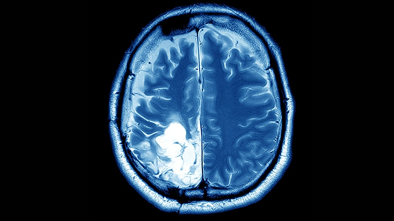 metastatic cancer of the brain