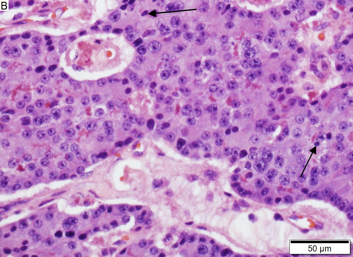 neuroendocrine cancer and pancreas