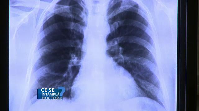 noutati in cancer pulmonar squamous papilloma in nose