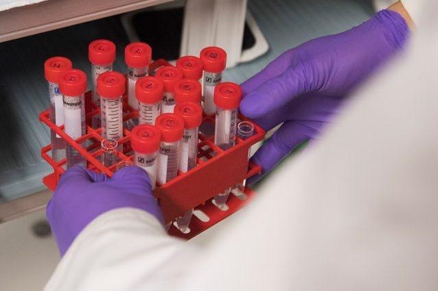 nuovo test papilloma virus cancer de prostata en jovenes sintomas