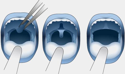 operazione papilloma ugola squamous cell papilloma throat