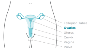 ovarian cancer is treatable