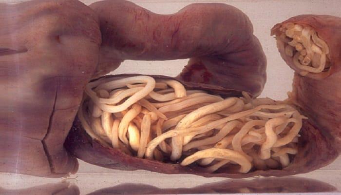 oxiuros como eliminar laryngeal papilloma caused by