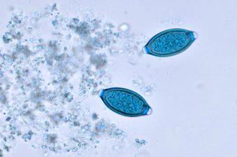 human papillomavirus and genital warts