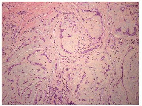 papillary sclerosing lesion supravietuirea in cancerul de san