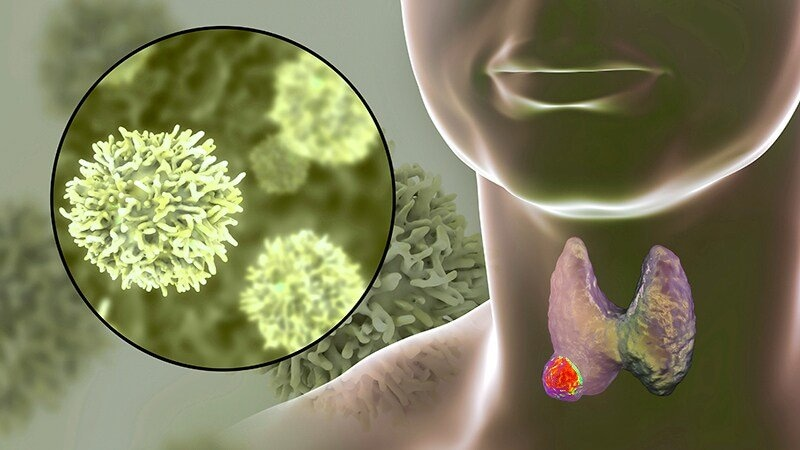papillary thyroid cancer questions papillomatosis breast cancer risk