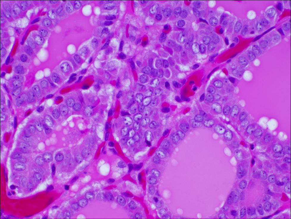 papillary thyroid carcinoma pathology outlines