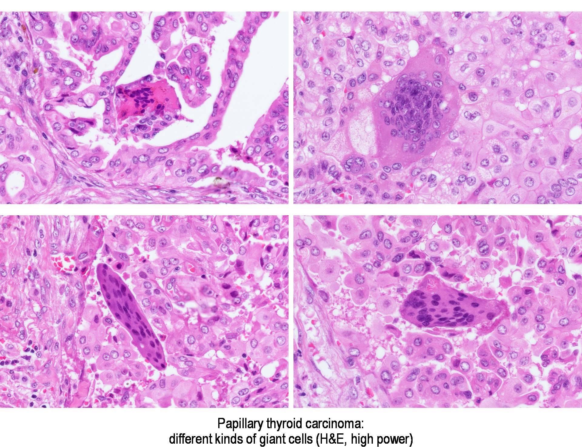 papillary thyroid carcinoma pathology outlines virus del papiloma canino