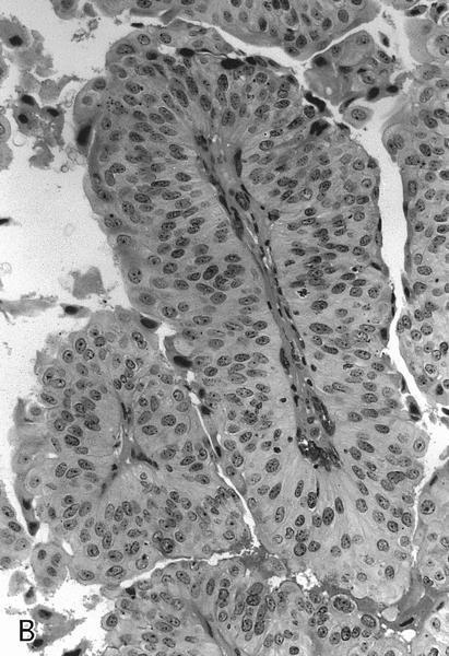 papillary urothelial carcinoma icd neuroendocrine cancer carcinoid syndrome