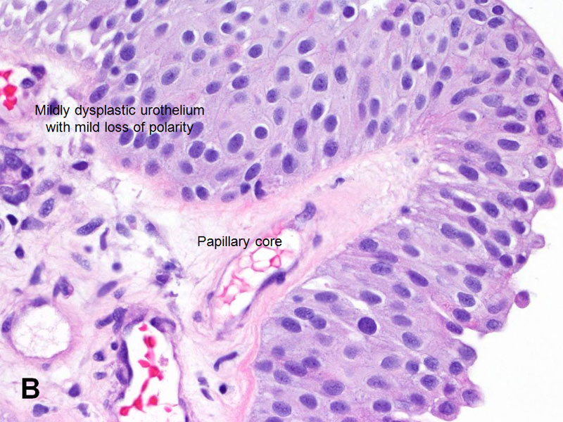 papillary urothelial neoplasm recurrence