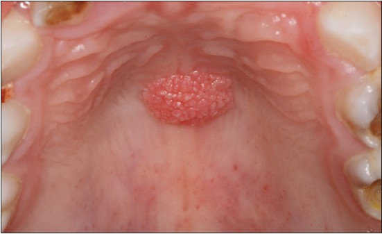 papilloma on hard palate virus papiloma humano saliva