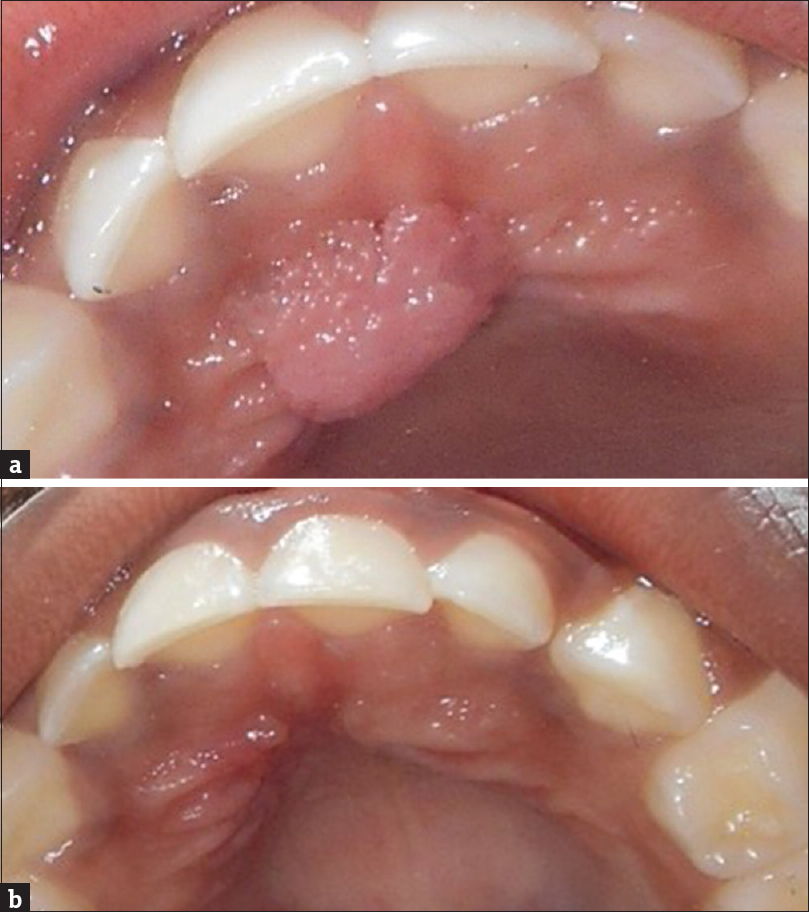 papilloma on hard palate test papilloma virus roma