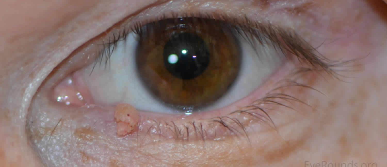 papilloma on the eyelid