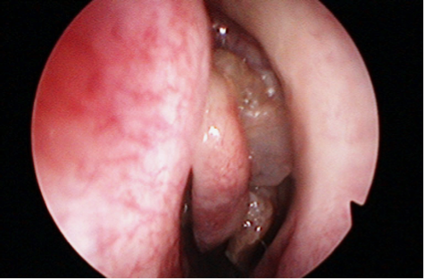 papilloma virus home remedy hpv penile carcinoma