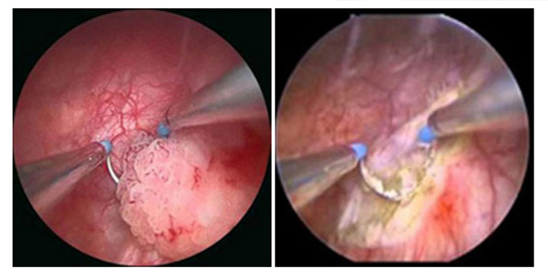 papilloma vescicale prognosi