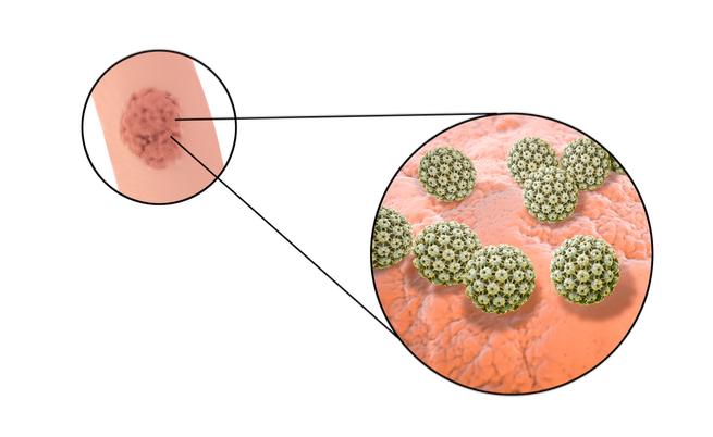 ce este toxoplasmoza in sarcina papilloma nasopharynx