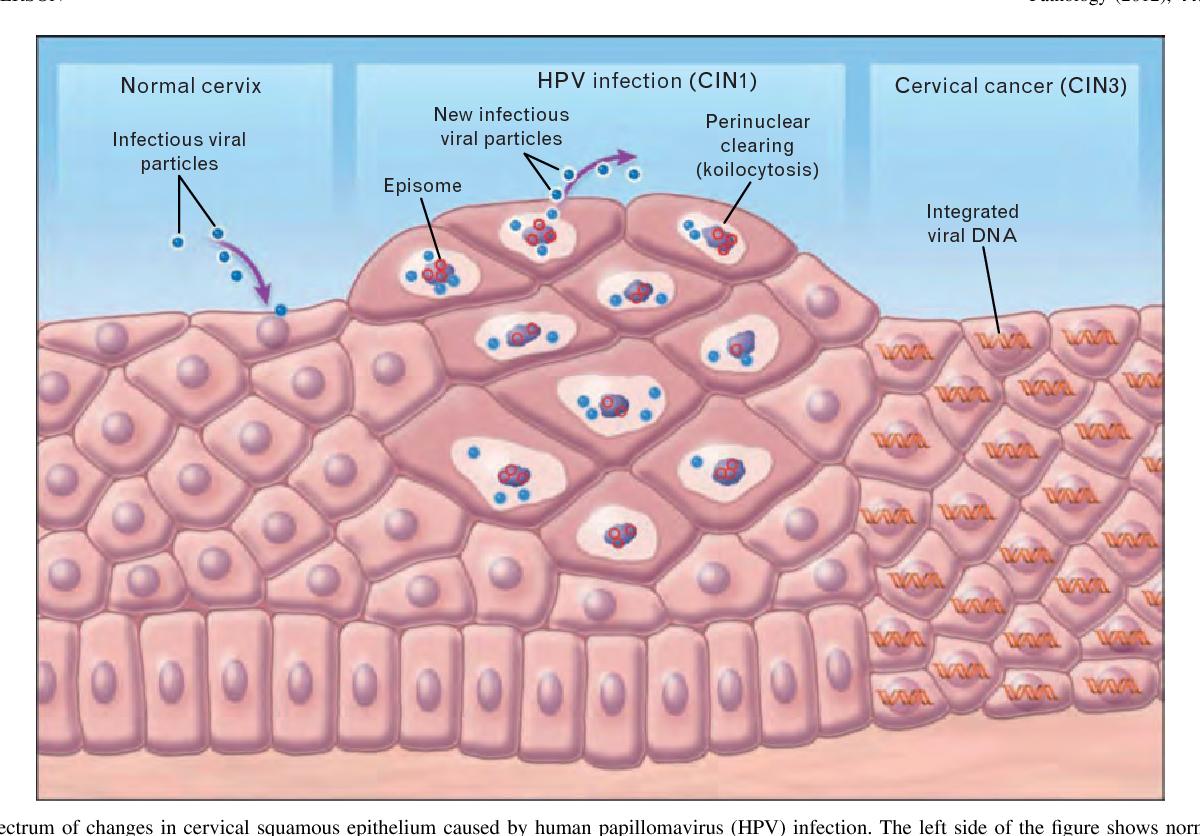 papilloma virus squamous epithelium papiloma humano se transmite de mujer a hombre