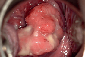 papillomavirus apres accouchement