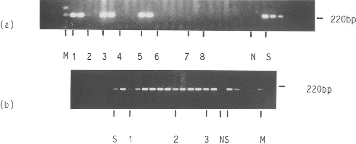 papillomavirus definition simple cancer de prostata dados estatisticos