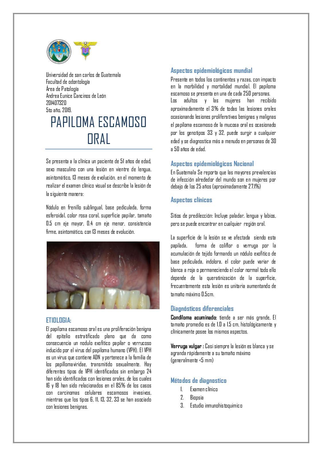 schistosomiasis of bladder cancer hormonal genetique
