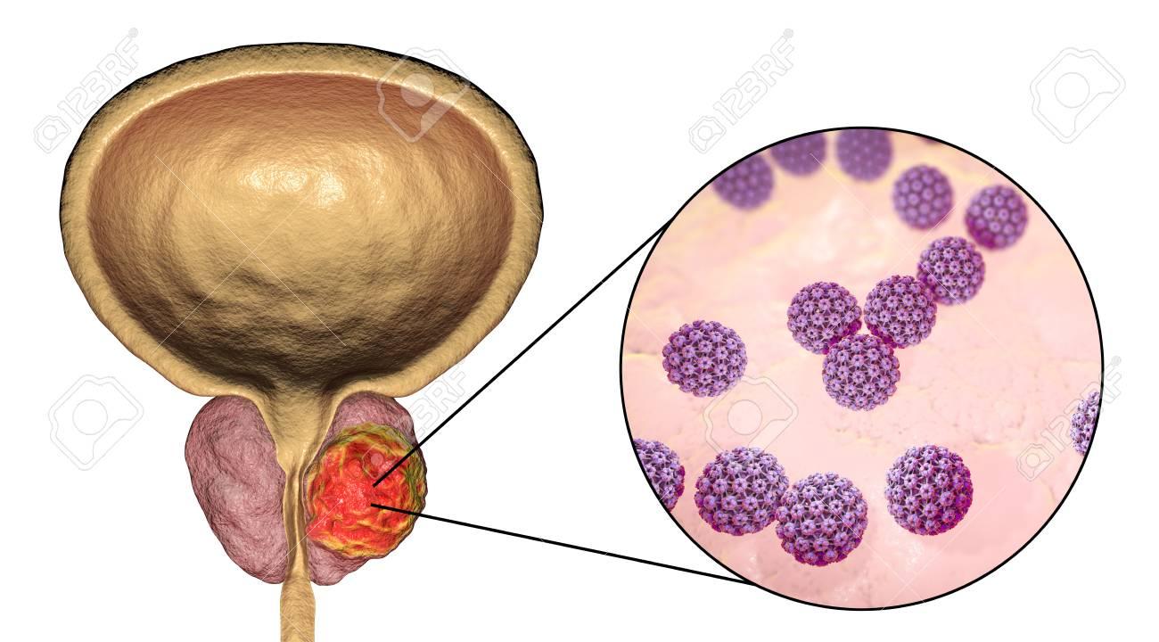 papiloma humano no canceroso