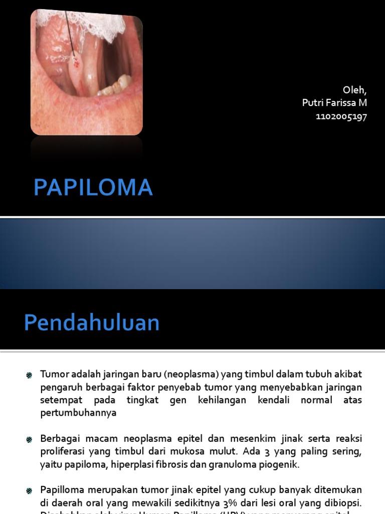 papiloma rongga mulut adalah