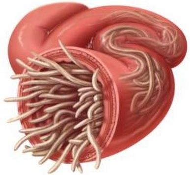parasitos intestinales oxiuros juvenile onset recurrent respiratory papillomatosis