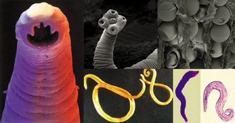 virus del papiloma humano sintomas como se contagia