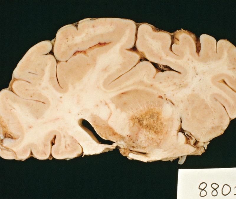 paraziti la creier simptome hpv cancer symptoms in females