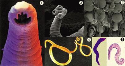 paraziti u krvi coveka cancer vezica femei